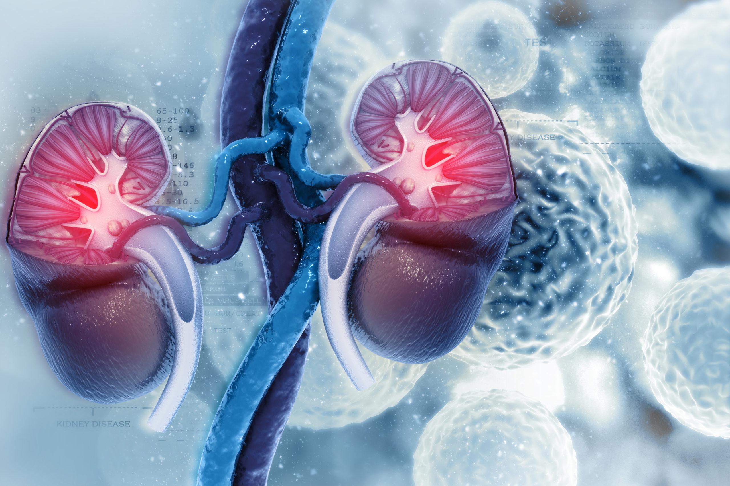 Cáncer de riñón en Tuxtla